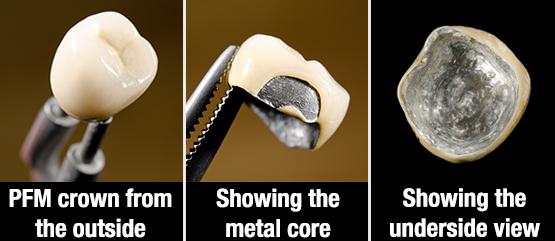 PFM Porcelain Fused Metal Crowns - Dimension Dental